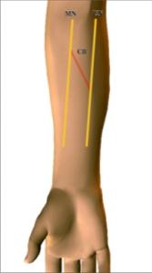 MN - Median Nerve; UN - Ulnar nerve; CB - Communicating branch.