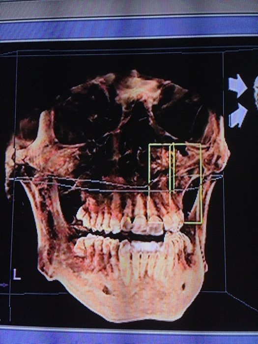 By the way, 3D CT machines are the coolest thing out there. Definitely putting on my amazon wishlist.