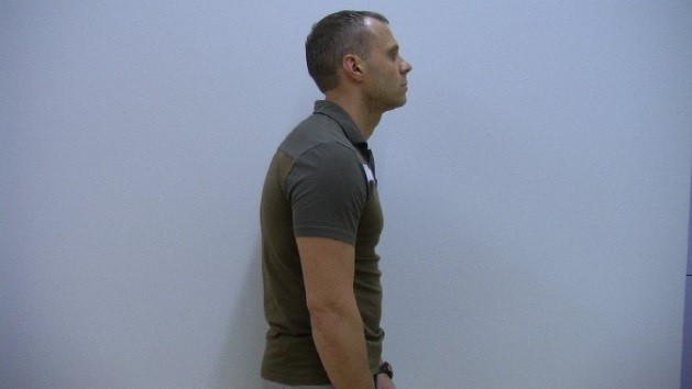 Forward-Head-Posture